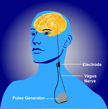 vagus-nerve-stimulation-public